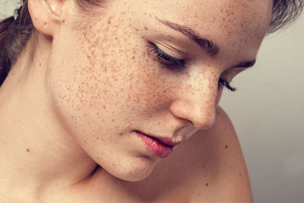 freckle removal treatments